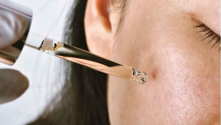 Macchie della pelle: ecco come rimuoverle con la bava di lumaca